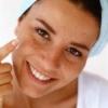 Акне: лікування в домашніх умовах. Що таке акне на обличчі?