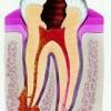 Періодонтит тимчасових зубів