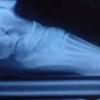 Артроз гомілковостопного суглоба: лікування