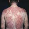 Атопічний дерматит лікування дітей