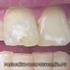 Білі плями на зубах - чому, лікування