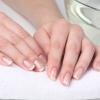 Білі точки на нігтях: причини появи
