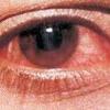 Хвороби очей