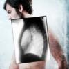 Хвороби легенів людини: назви спадкових захворювань і вад