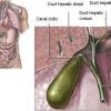 Хвороби жовчного міхура. Лікування каменів у жовчному міхурі народними рецептами
