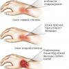 Чим обробляти рану з пухирями після опіку окропом?