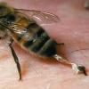 Чим зняти пухлина від укусу бджоли?
