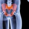 Чрезвертельний перелом стегна у літніх людей