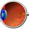 Дегенерація сітківки ока