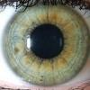 Діагностика захворювань по райдужці очей