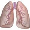 Фітотерапевтичні засоби лікування легеневої недостатності