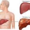 Фітотерапія при цирозі печінки
