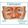 Причини, симптоми і лікування гаймориту у дітей