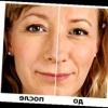 Гіалуронова кислота: до і після