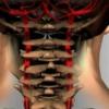 Гіпоплазія хребетних артерій