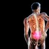 Грижа хребта: симптоми і лікування