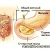 Холецистит: про симптоми, лікування народним засобом