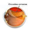 Тромбоз сітківки ока