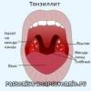 Хронічні тонзиліти - про лікування народними засобами