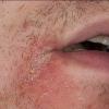 Хроническое кожное заболевание импетиго