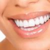 Ідеальна посмішка: вініри для зубів