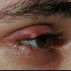 Ячмінь на оці і його лікування