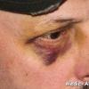 Як позбутися від синяка під оком швидко