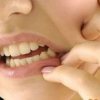 Як ріжеться зуб мудрості