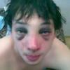Як прибрати синці під очима від удару?