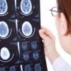 Кіста прозорої перегородки головного мозку