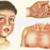 Клінічні симптоми скарлатини у дітей