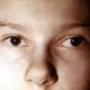 Косоокість дітей: причини, лікування