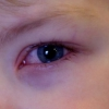 Червоні очі у дитини: причини і лікування