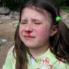 Кровотеча з носа: причини, що робити?