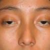Лагофтальм - симптоми, лікування