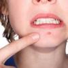 Лікування фурункула в домашніх умовах - що можна і що не можна робити