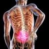 Лікування міжхребцевої грижі поперекового відділу хребта