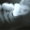 Лікування, видалення зуба мудрості якщо болить?