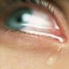 Лікування запалення очей народними засобами