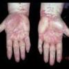 Лишай - загальна назва шкірних хвороб