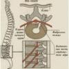 Міжхребцева грижа шийного відділу