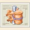Міжхребцева грижа поперекового, грудного, шийного відділу симптоми, лікування