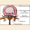 Міжхребцева грижа спини - лікування, причини, симптоми захворювання