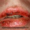 Багатоформна еритема: лікування, симптоми, причини