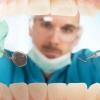 Наліт на зубах: косметичний недолік або загроза здоров'ю?