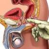 Новітні методи лікування простатиту у чоловіків