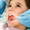 Чи потрібно лікувати молочні зуби