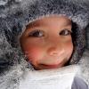 Обмороження щоки у дитини: що робити? Ознаки обмороження, профілактика і перша допомога