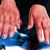 Обмороження ділянки шкіри, класифікація, перша допомога
