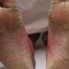 Перші ознаки і лікування грибка стопи